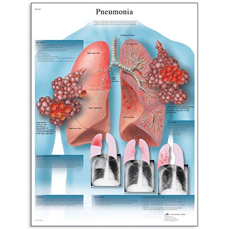 3b Scientific Vr1326l Gráfico Anatómico Brillante Laminado N ...