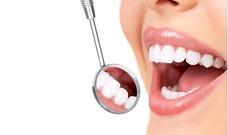 Odontologo - Dentista (centro) Limpieza Sarro