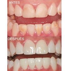 Prótesis Estéticas Dentales -dentista-consulta 095018369
