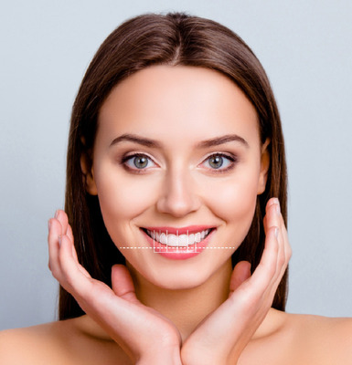 Dentista - Prótesis Dentales Estéticas - Carillas Dentales