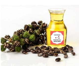 Aceite De Ricino-aceite De Almendras Para Caída De Cabello