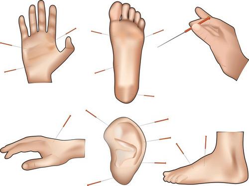 agujas de acupuntura de mano