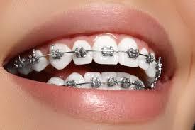 aparatos ortodoncia para todas las edades, dentista