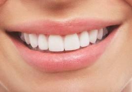 brackets - ortodoncia promoción septiembre 2018- dentista