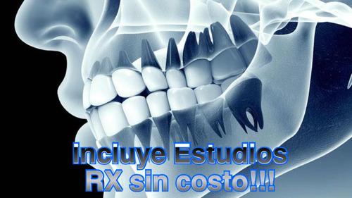brackets up! estudios rx incluidos sin costo!!