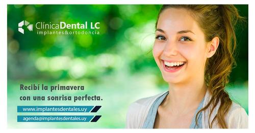 clínica dental lc  - implantes dentales