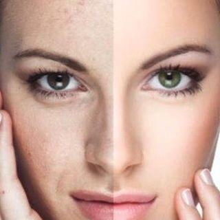 Eliminar manchas en la cara