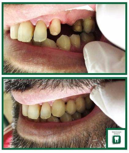 dentista montevideo - tres cruces - brackets - extracciones