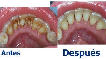 dentista-promoción limpieza de sarro $600