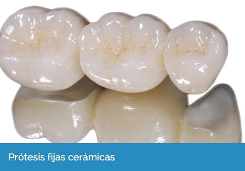 dentista - protesis dentales accesibles y otros...