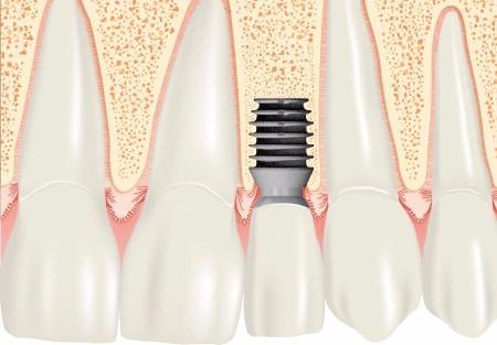 implantes dentales 50% off- prótesis completa-usa