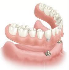 implantes dentales - consulta sin costo