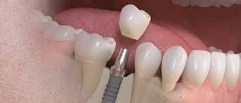 implantes dentales !!!!!!!! tarjetas