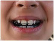 implantes, ortodoncia, prótesis, blanqueamiento, resinas