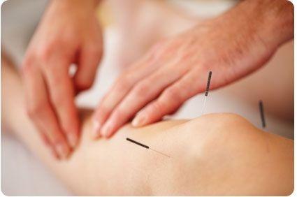 medicina china. acupuntura. ventosas. quiropraxia.