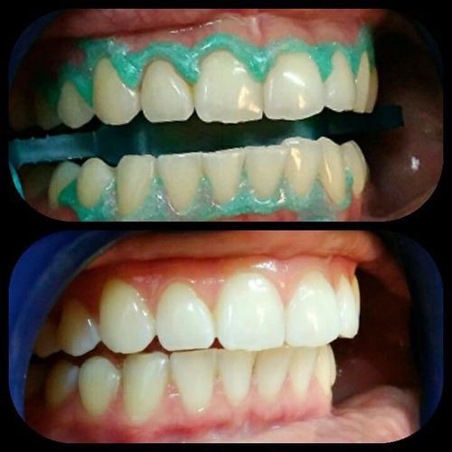 odontología, dentista en pocitos