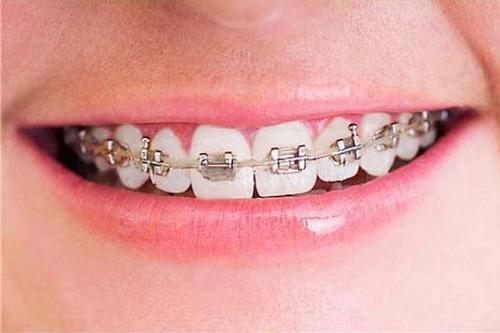 odontologos ortodoncia implantes