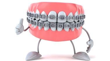 ortodoncia 50% descuento! brackets metalicos