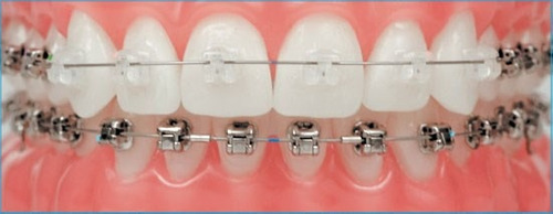ortodoncia, brackets, aparatos, implantes. dentista.