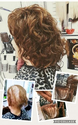peluca a tu.medida. quimioterapia- alopecia-