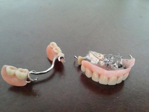 prótesis dentales y reparaciones, domicilio o consultorio.