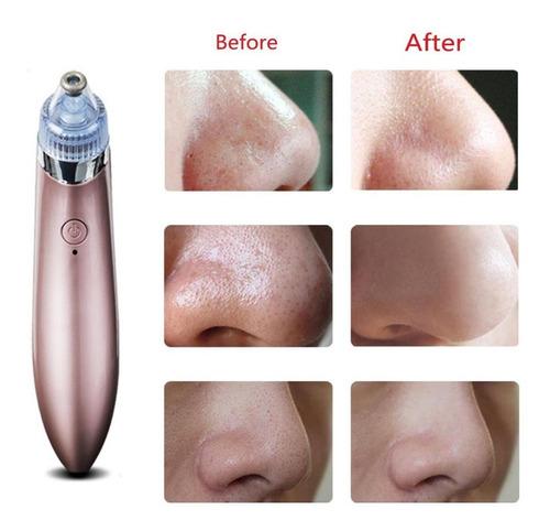 removedor quita puntos negros exfoliante extractor saca acne